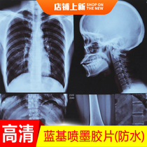 Dry Blue Chian Inkjet Health HD Hospital utilise radiofilm DRCR CTX-ray MR MAGNETIC résonance dentaire feuille bleue.
