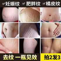 Olive oil pregnant women fat pattern elimination prevention Pregnancy leopard print mother repair Frost PIH special Oracle Postpartum